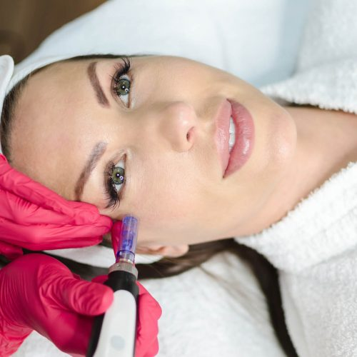 Beautician performs a micro needle mesotherapy treatment on a woman's face. Treatment woman at the beauty spa salon, above or top or flat lay view of amazing sexy female with green eyes.
